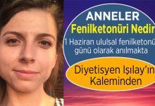 Photo of Fenilketonüri Nedir, Teşhisi Ve Tedavisi